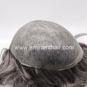 Human Hair Prosthesis